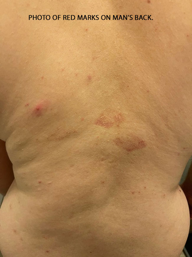 PHOTO OF RED MARKS ON MAN'S BACK.